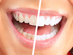 Teeth Whitening in Mishawaka, IN | Dr. George Mighion