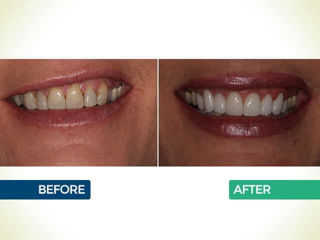 Upper 8 Crowns with Gum Grafts in Mishawaka, IN | Dr. George Mighion