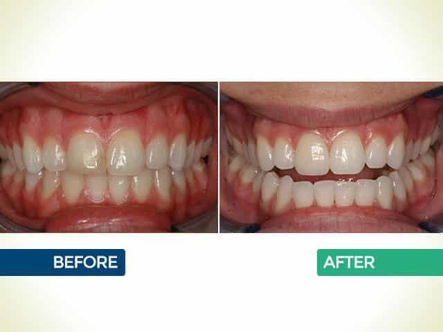 Invisalign in Bellaire Houston, TX | The Huston Dentists | Dr. Fraza