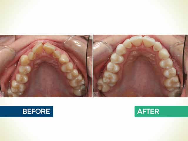 6 Month Smiles in Mishawaka, IN | Dr. George Mighion