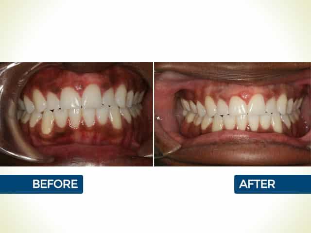 Gum Pigmentation in Mishawaka, IN | Dr. George Mighion