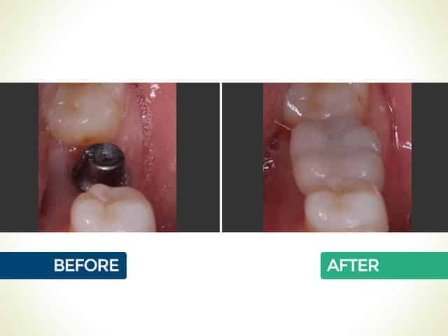 Dental Implants in Mishawaka, IN | Dr. George Mighion