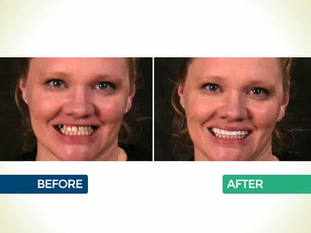 Snap On Smile in Mishawaka, IN | Dr. George Mighion